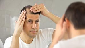 فراغات الشعر وعلاجاتها