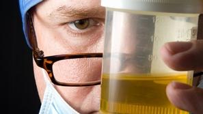 كل ما تريد معرفته عن التهاب البول عند الرجال