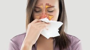 التهاب الجيوب الأنفية