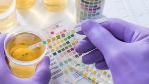تحليل البول (Urinalysis) فوائده وطرقه
