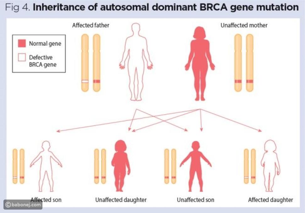 الأمراض الوراثية المرتبطة بالجنس
