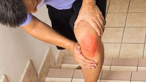 إصابة العضلة الضامة وتأثيراتها