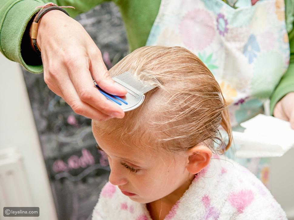 علاج القمل عند الأطفال