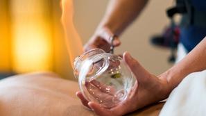 العلاج بالحجامة: هل للحجامة منافع علاجية فعلية؟ والتأثيرات الجانبية