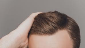 زراعة الشعر بالخلايا الجذعية