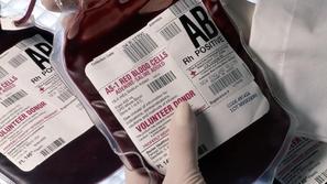 فصائل الدم النادرة وأهمية معرفة فصيلة الدم