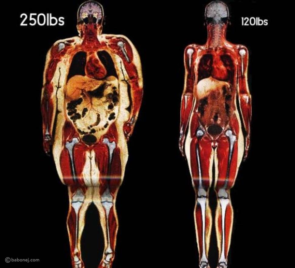 الدهون في جسم الإنسان