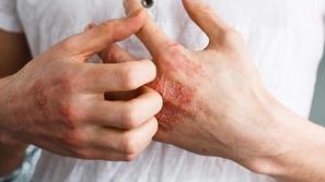 علاج طبيعي للأكزيما