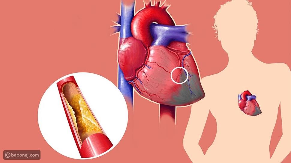 ارتفاع الكوليسترول