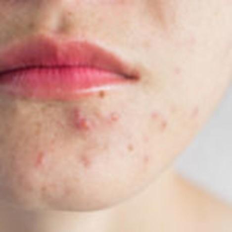 تعرف على أشيع الآفات الجلدية مع أسبابها وطرق علاجها