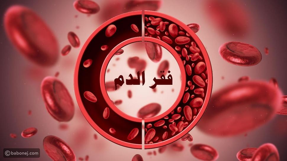 فقر الدم Anemia.. أنواع وأعراض وعلاج