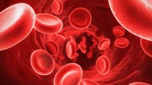 ارتفاع نسبة الحديد في الدم