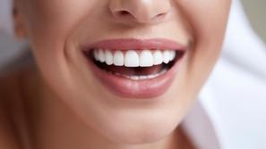 هل تساعد بيكربونات الصوديوم على تبيض الأسنان حقًا