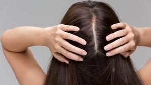 تقوية بصيلات الشعر