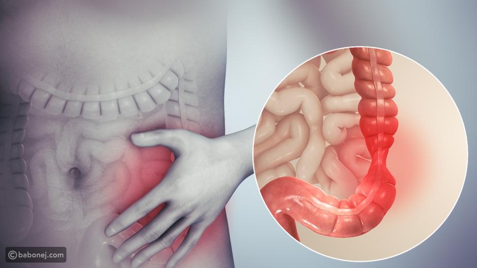 أعراض وتشخيص القولون الهضمي