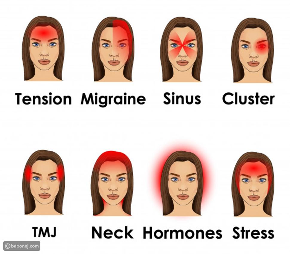 مناطق الألم في مختلف أنواع الصداع