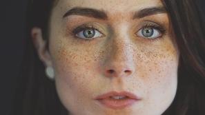 النمش في الوجه وعلاجه بأكثر الطرق نجاحاً
